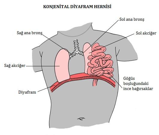 konjenital diyafram hernisi